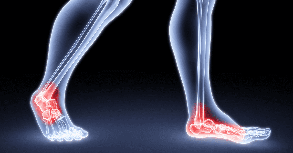 Your Feet Are the Windows To Your Crossfit Future