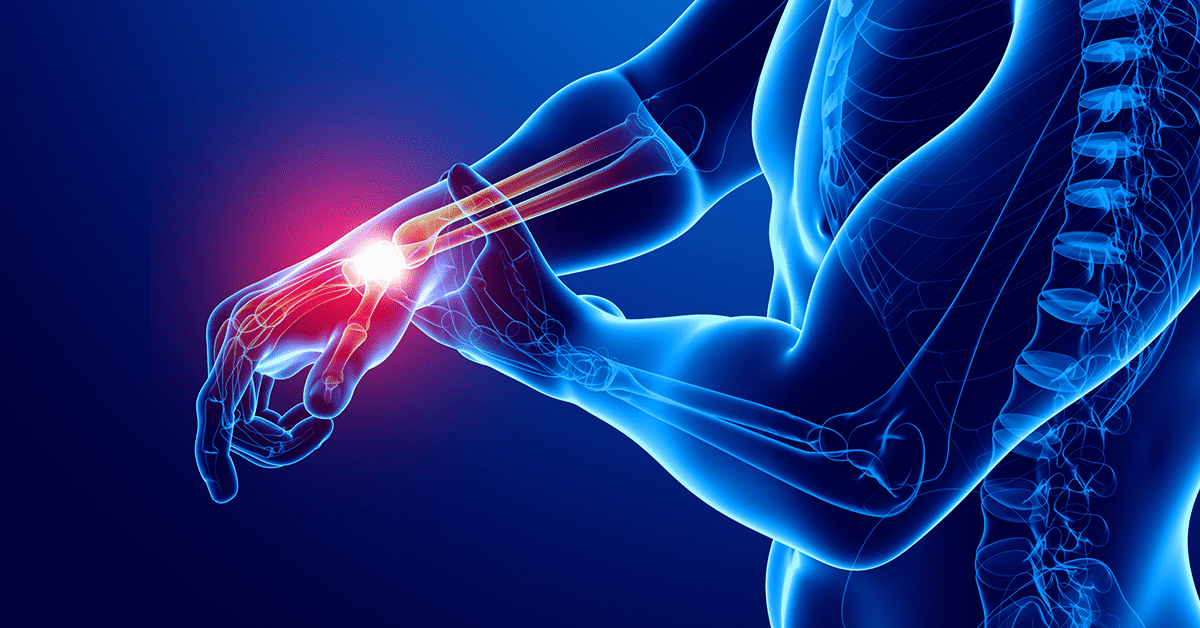 How to Adapt Training: Wrist and Elbow Injuries