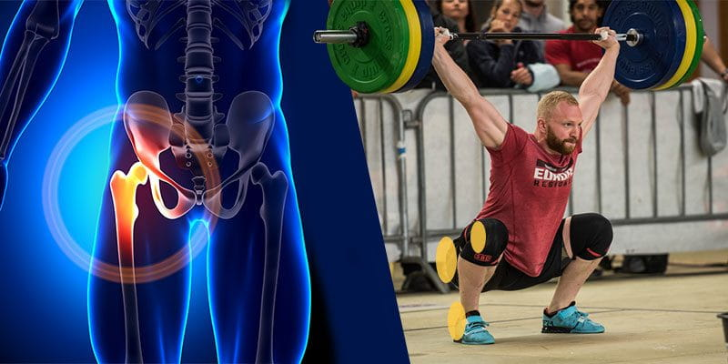 Joint restriction hip mobility