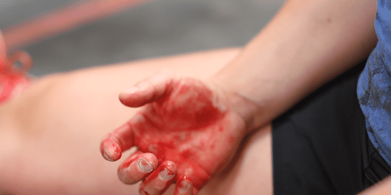Learn How to Tape Your Hands for CrossFit and Prevent Injuries