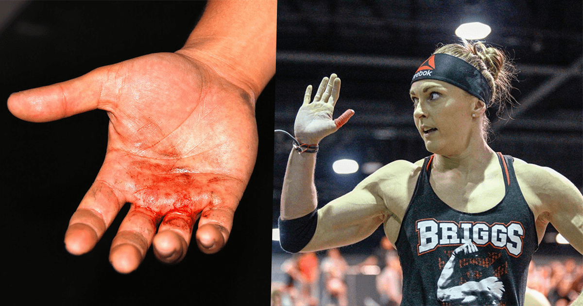 8 Battle Scars that Every Crossfitter will Understand
