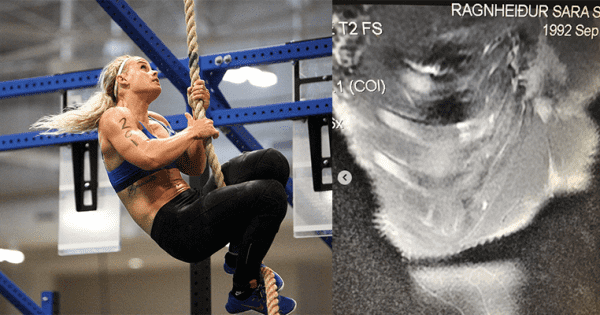 BREAKING NEWS – Sara Sigmundsdottir Competed at CrossFit Games with Broken Rib