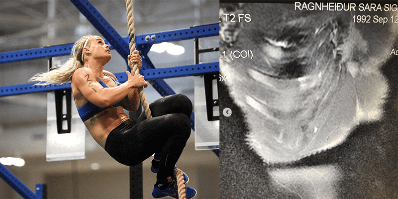 Sara Sigmundsdottir Competed at CrossFit Games with Broken Rib