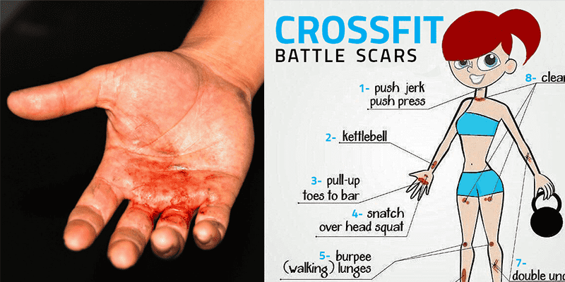 Crossfit-injuries
